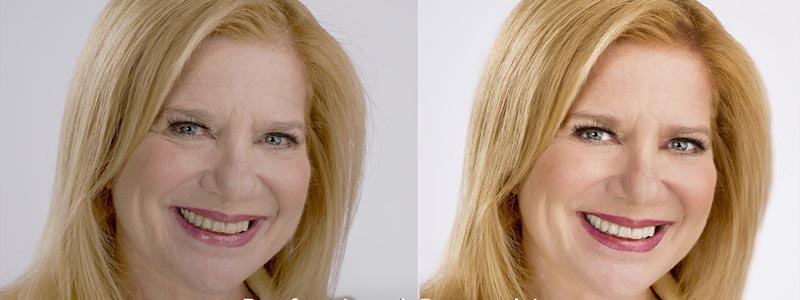 سفید کردن دندان ها با فتوشاپ